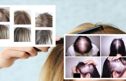 Hair Loss in Young Women